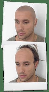 Micropigmentación de cuero cabelludo virtual